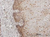 Immunoperoxidase of monoclonal antibody to USF2 on formalin-fixed paraffin-embedded human esophagus. [antibody concentration 1 ug/ml]