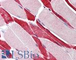 Anti-USP7 antibody IHC of human skeletal muscle. Immunohistochemistry of formalin-fixed, paraffin-embedded tissue after heat-induced antigen retrieval. Antibody LS-B434 concentration 5 ug/ml.