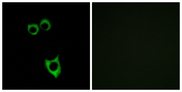 VPAC2 / VIPR2 Antibody - Immunofluorescence analysis of MCF7 cells, using VIPR2 Antibody. The picture on the right is blocked with the synthesized peptide.