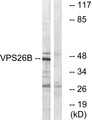VPS26B Antibody - Western blot analysis of lysates from LOVO cells, using VPS26B Antibody. The lane on the right is blocked with the synthesized peptide.