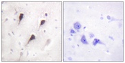 Immunohistochemistry analysis of paraffin-embedded human brain tissue, using WAVE1 Antibody. The picture on the right is blocked with the synthesized peptide.