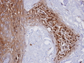 WBSCR22 Antibody - IHC of paraffin-embedded CA922 xenograft using WBSCR22 antibody at 1:100 dilution.