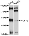 WDFY2 Antibody - Western blot analysis of extracts of various cell lines, using WDFY2 antibody at 1:1000 dilution. The secondary antibody used was an HRP Goat Anti-Rabbit IgG (H+L) at 1:10000 dilution. Lysates were loaded 25ug per lane and 3% nonfat dry milk in TBST was used for blocking. An ECL Kit was used for detection and the exposure time was 30s.