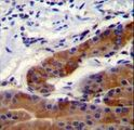 DFNB31 Antibody immunohistochemistry of formalin-fixed and paraffin-embedded stomach tissue followed by peroxidase-conjugated secondary antibody and DAB staining.