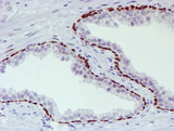 IHC of paraffin-embedded Carcinoma of Human prostate tissue using anti-WWTR1 mouse monoclonal antibody.
