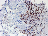 WWTR1 / TAZ Antibody - IHC of paraffin-embedded Carcinoma of Human bladder tissue using anti-WWTR1 mouse monoclonal antibody.