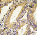 Formalin-fixed and paraffin-embedded human colon carcinoma tissue reacted with BIRC4 antibody , which was peroxidase-conjugated to the secondary antibody, followed by DAB staining. This data demonstrates the use of this antibody for immunohistochemistry; clinical relevance has not been evaluated.