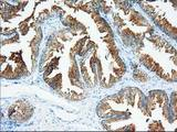 XPNPEP1 / Aminopeptidase P Antibody - Immunohistochemical staining of paraffin-embedded Human prostate tissue using anti-XPNPEP1 mouse monoclonal antibody. (Dilution 1:50).