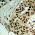 Immunohistochemical analysis of Exportin 5 staining in human ovarian cancer formalin fixed paraffin embedded tissue section. The section was pre-treated using heat mediated antigen retrieval with sodium citrate buffer (pH 6.0). The section was then incubated with the antibody at room temperature and detected using an HRP conjugated compact polymer system. DAB was used as the chromogen. The section was then counterstained with hematoxylin and mounted with DPX.