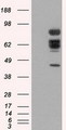 HEK293T cells were transfected with the pCMV6-ENTRY control (Left lane) or pCMV6-ENTRY XRCC1 (Right lane) cDNA for 48 hrs and lysed. Equivalent amounts of cell lysates (5 ug per lane) were separated by SDS-PAGE and immunoblotted with anti-XRCC1.