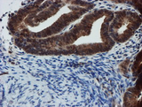 XTP4 / C17orf37 Antibody - IHC of paraffin-embedded Adenocarcinoma of Human endometrium tissue using anti-C17orf37 mouse monoclonal antibody. (Heat-induced epitope retrieval by 10mM citric buffer, pH6.0, 100C for 10min).