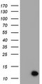 XTP4 / C17orf37 Antibody - HEK293T cells were transfected with the pCMV6-ENTRY control (Left lane) or pCMV6-ENTRY C17orf37 (Right lane) cDNA for 48 hrs and lysed. Equivalent amounts of cell lysates (5 ug per lane) were separated by SDS-PAGE and immunoblotted with anti-C17orf37.