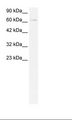 ZBTB20 Antibody - Jurkat Cell Lysate.  This image was taken for the unconjugated form of this product. Other forms have not been tested.