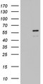 ZBTB37 Antibody - HEK293T cells were transfected with the pCMV6-ENTRY control (Left lane) or pCMV6-ENTRY ZBTB37 (Right lane) cDNA for 48 hrs and lysed. Equivalent amounts of cell lysates (5 ug per lane) were separated by SDS-PAGE and immunoblotted with anti-ZBTB37.