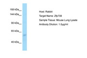 Zfp708 Antibody -  This image was taken for the unconjugated form of this product. Other forms have not been tested.