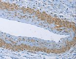 Immunohistochemistry of Human cervical cancer using ZMYND11 Polyclonal Antibody at dilution of 1:50.