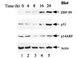 ZNF148 / ZBP-89 Antibody - Anti-ZBP-89 Antibody - Western Blot. Serum starvation induces ZBP-89 and p53 expression. AGS (gastric carcinoma) cells were cultured in serum-free F-12 medium for the indicated times, and western blots were used to detect the expression profiles of ZBP-89, p53, and p14ARF. Blotting was with Rabbit-anti-ZBP-89 antibody. For detection use HRP conjugated Gt-anti-Rabbit IgG MX10 (LS-C60865). See Bai and Merchant (2001) for additional details.