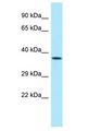 ZNF185 Antibody - ZNF185 antibody Western Blot of Mouse Stomach. Antibody dilution: 1 ug/ml.  This image was taken for the unconjugated form of this product. Other forms have not been tested.