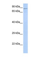 ZNF226 antibody LS-C101580 Western blot of 293T cell lysate.  This image was taken for the unconjugated form of this product. Other forms have not been tested.