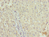 ZNF253 Antibody - Immunohistochemistry of paraffin-embedded human liver cancer at dilution 1:100