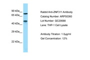 ZNF311 Antibody -  This image was taken for the unconjugated form of this product. Other forms have not been tested.