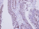 IHC of paraffin-embedded Colon ca, using ZNF329 antibody at 1:250 dilution.
