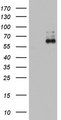 ZNF34 Antibody - HEK293T cells were transfected with the pCMV6-ENTRY control (Left lane) or pCMV6-ENTRY ZNF34 (Right lane) cDNA for 48 hrs and lysed. Equivalent amounts of cell lysates (5 ug per lane) were separated by SDS-PAGE and immunoblotted with anti-ZNF34.