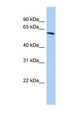ZNF567 antibody LS-C101807 Western blot of PANC1 cell lysate.  This image was taken for the unconjugated form of this product. Other forms have not been tested.