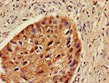 ZNF695 Antibody - Immunohistochemistry image of paraffin-embedded human cervical cancer at a dilution of 1:100