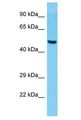ZNF772 Antibody - ZNF772 antibody Western Blot of HepG2. Antibody dilution: 1 ug/ml.  This image was taken for the unconjugated form of this product. Other forms have not been tested.