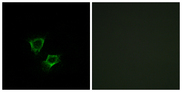 ZNRF2 Antibody - Immunofluorescence analysis of A549 cells, using ZNRF2 Antibody. The picture on the right is blocked with the synthesized peptide.