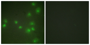 ZRANB2 / ZNF265 Antibody - Immunofluorescence analysis of HUVEC cells, using ZNF265 Antibody. The picture on the right is blocked with the synthesized peptide.