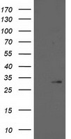15-PGDH / HPGD Antibody - HEK293T cells were transfected with the pCMV6-ENTRY control (Left lane) or pCMV6-ENTRY HPGD (Right lane) cDNA for 48 hrs and lysed. Equivalent amounts of cell lysates (5 ug per lane) were separated by SDS-PAGE and immunoblotted with anti-HPGD.