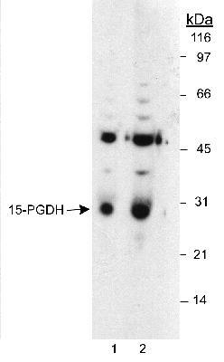 Detection of 15-PGDH in LoVo whole cell lysates. Lane 1 uses a 1:6,000 dilution. Lane 2 uses a 1:1,500 dilution. ECL: 10 second exposure.  This image was taken for the unconjugated form of this product. Other forms have not been tested.