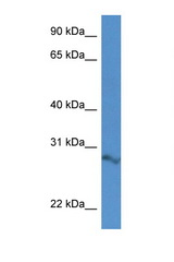2610034B18Rik Antibody - 2610034B18Rik antibody Western blot of Mouse Spleen lysate. Antibody concentration 1 ug/ml.  This image was taken for the unconjugated form of this product. Other forms have not been tested.