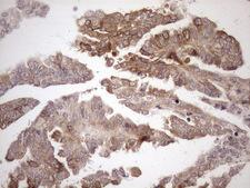 AAAS / Adracalin Antibody - Immunohistochemical staining of paraffin-embedded Adenocarcinoma of Human ovary tissue using anti-AAAS mouse monoclonal antibody. (Heat-induced epitope retrieval by 1mM EDTA in 10mM Tris buffer. (pH8.5) at 120°C for 3 min. (1:150)
