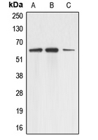 AAAS / Adracalin Antibody - Western blot analysis of Adracalin expression in A431 (A); HEK293T (B); HeLa (C) whole cell lysates.