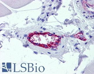 Anti-AAAS / Adracalin antibody IHC of human skeletal muscle, vessel. Immunohistochemistry of formalin-fixed, paraffin-embedded tissue after heat-induced antigen retrieval. Antibody concentration 5 ug/ml.