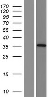 AADACL3 Protein - Western validation with an anti-DDK antibody * L: Control HEK293 lysate R: Over-expression lysate