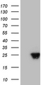 HEK293T cells were transfected with the pCMV6-ENTRY control. (Left lane) or pCMV6-ENTRY AANAT. (Right lane) cDNA for 48 hrs and lysed. Equivalent amounts of cell lysates. (5 ug per lane) were separated by SDS-PAGE and immunoblotted with anti-AANAT. (1:2000)