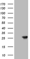 AANAT Antibody - HEK293T cells were transfected with the pCMV6-ENTRY control. (Left lane) or pCMV6-ENTRY AANAT. (Right lane) cDNA for 48 hrs and lysed