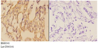 AANAT Antibody - Immunohistochemistry (IHC) analysis of AANAT antibody in paraffin-embedded human breast carcinoma tissue at 1:50, showing cytoplasmic strong positive staining. Negative control (the right) using PBS instead of primary antibody. Secondary antibody is Goat Anti-Rabbit IgG.