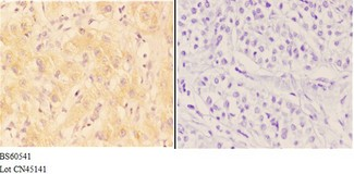 AANAT Antibody - Immunohistochemistry (IHC) analysis of AANAT antibody in paraffin-embedded human liver carcinoma tissue at 1:50, showing cytoplasmic strong positive staining. Negative control (the right) using PBS instead of primary antibody. Secondary antibody is Goat Anti-Rabbit IgG.