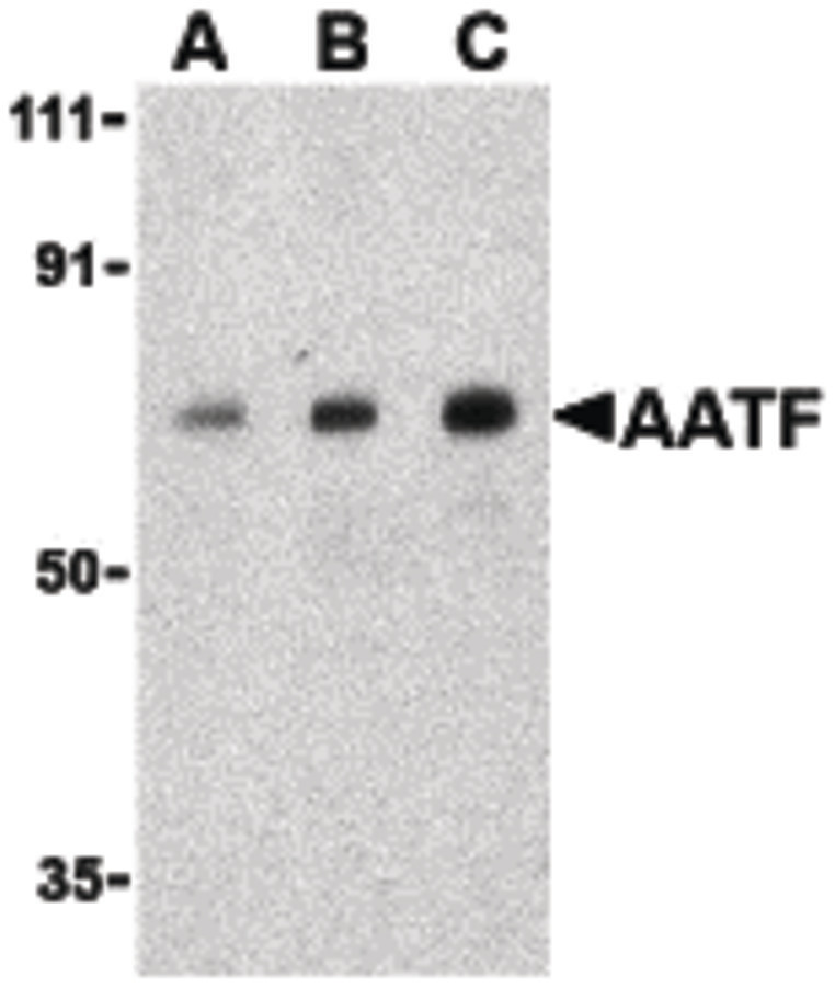 Western blot of AATF in human small intestine cell lysate with AATF antibody at (A) 0.5, (B) 1 and (C) 2 ug/ml.