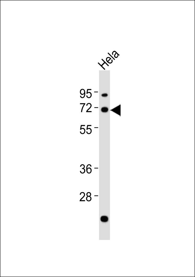 Anti-AATF Antibody at 1:1000 dilution + HeLa whole cell lysates Lysates/proteins at 20 ug per lane. Secondary Goat Anti-Rabbit IgG, (H+L),Peroxidase conjugated at 1/10000 dilution Predicted band size : 63 kDa Blocking/Dilution buffer: 5% NFDM/TBST.