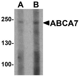 Western blot analysis of ABCA7 in 293 cell lysate with ABCA7 antibody at (A) 1 and (B) 2 ug/ml.
