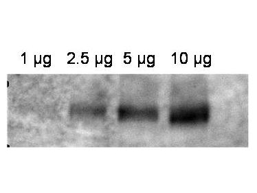 ABCB1 / MDR1 / P Glycoprotein Antibody - Western blot using the affinity purified anti-ABCB1 antibody shows detection of ABCB1 in crude membrane extracts from HF insect cells over-expressing human ABCB1. The extract was loaded onto a gel in the amounts indicated followed by electrophoresis and transfer to nitrocellulose. The membrane was probed with the primary antibody diluted to 1:600, followed by Peroxidase Conjugated Affinity Purified Anti-RABBIT IgG at 1:10,000.