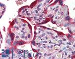 Anti-ABCB4 antibody IHC of human placenta. Immunohistochemistry of formalin-fixed, paraffin-embedded tissue after heat-induced antigen retrieval. Antibody concentration 5 ug/ml.  This image was taken for the unconjugated form of this product. Other forms have not been tested.