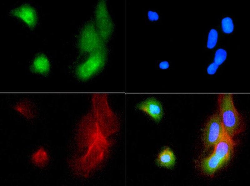 Immunocytochemistry/Immunofluorescence: ABCB5 Antibody - ABCB5 antibody was tested in A431 cells with FITC (green). Nuclei and actin were counterstained with DAPI (blue) and Phalloidin (red).  This image was taken for the unconjugated form of this product. Other forms have not been tested.