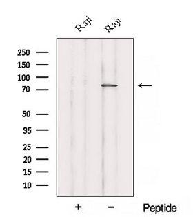 ABCB6 Antibody - Western blot analysis of extracts of Raji cells using ABCB6 antibody. The lane on the left was treated with blocking peptide.